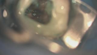 歯科顕微鏡を用いた根管治療