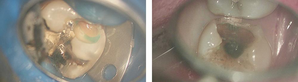 顕微鏡歯科治療