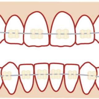 治療例32(110600032)