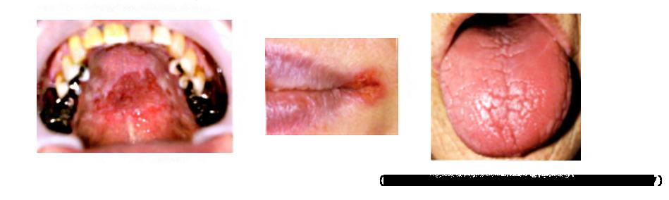 口腔カンジダ症(歯周病関連菌)