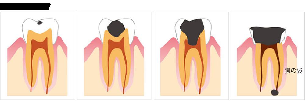 虫歯のステージ