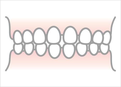 空隙歯列弓